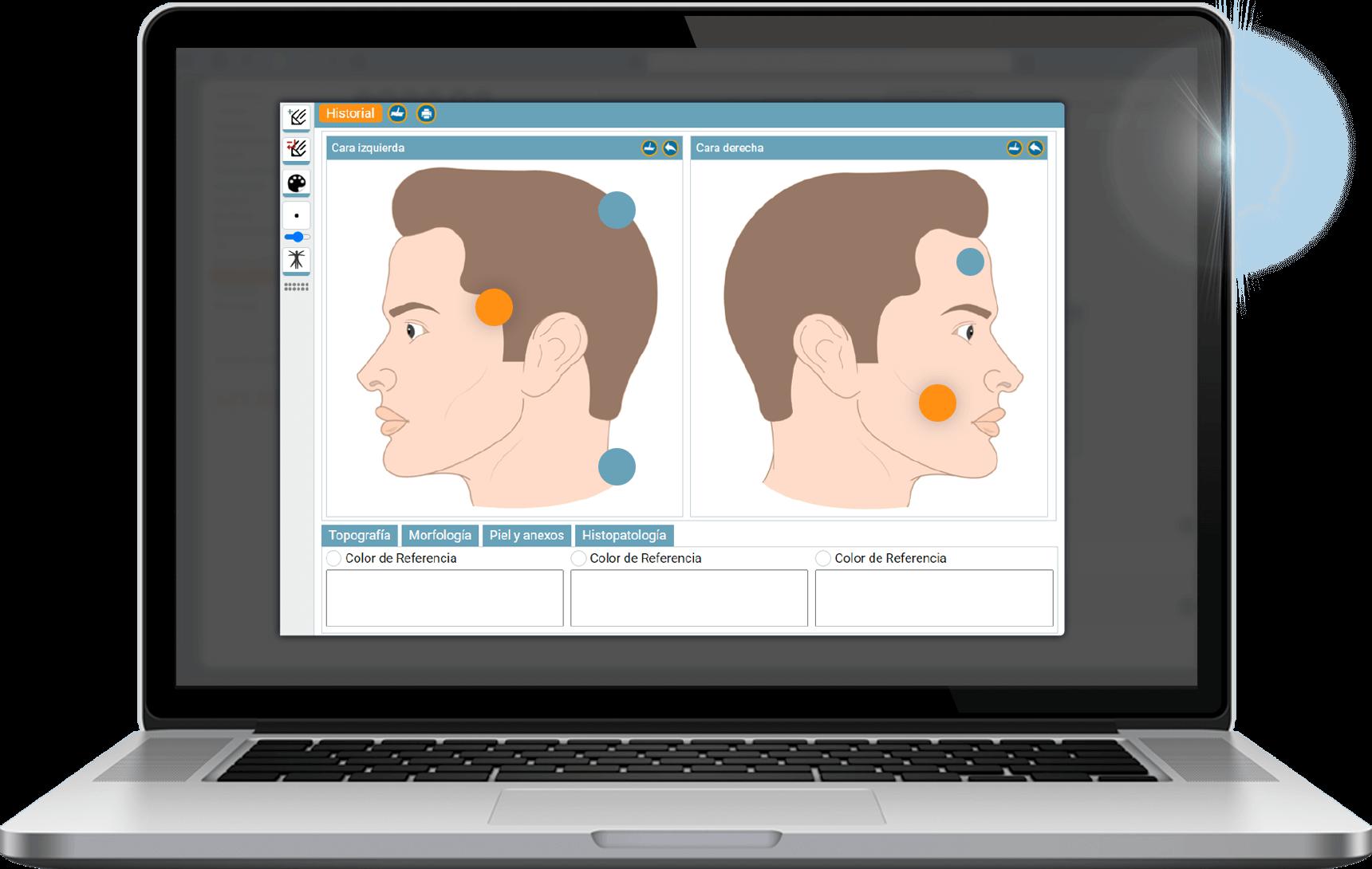 Software de historia clínica, con herramienta dermatológica .